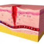 Cicatrización heridas