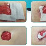 Abordaje de colostomía con separación mucocutánea e  infección, más úlcera superficial y cavitada