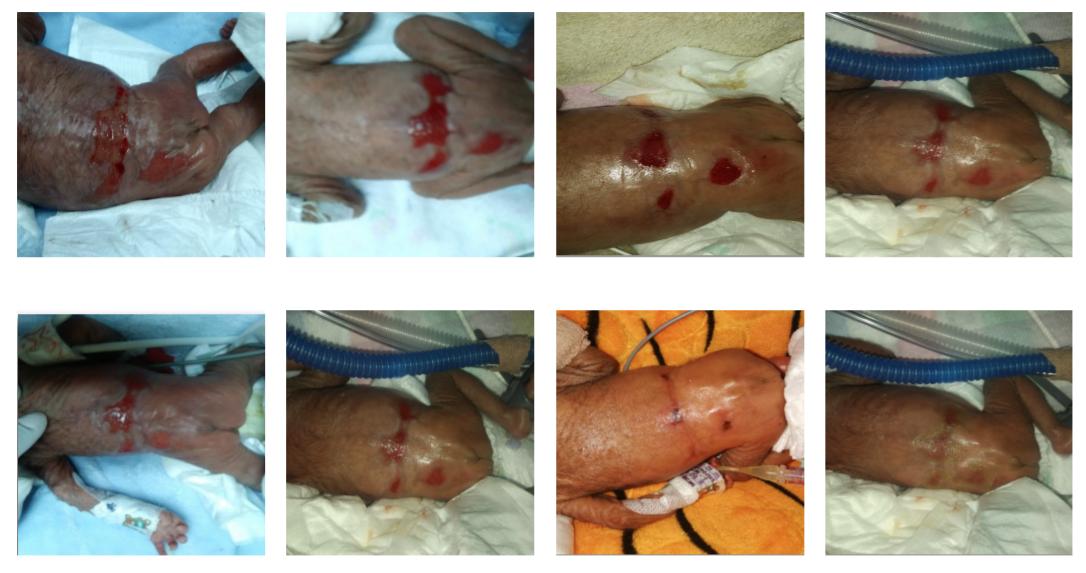 Tratamiento de Lesión dérmica en región dorsal y sacra en Recién Nacido